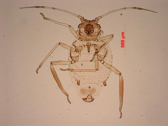 Aphthargelia rumbleboredomia oviparous female ex Symphoricarpos, cleared and mounted in Canada balsam.